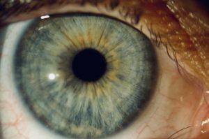 Augendiagnose Berlin Pankow